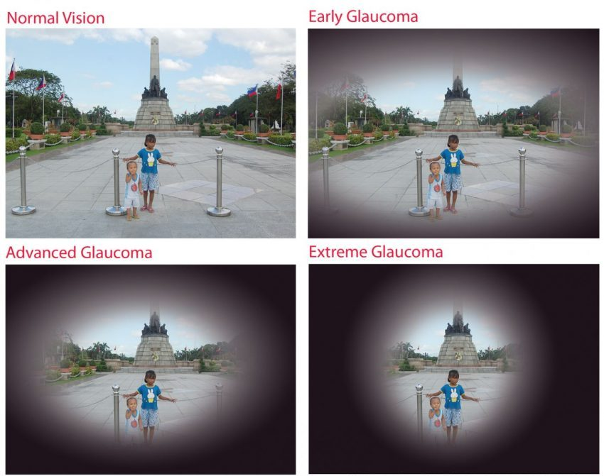 glaucoma symptoms optician london