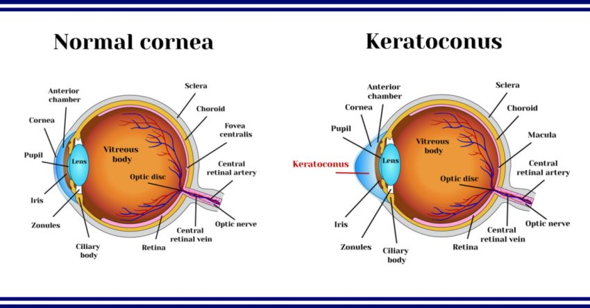 causes of glaucoma hodd barnes dickins